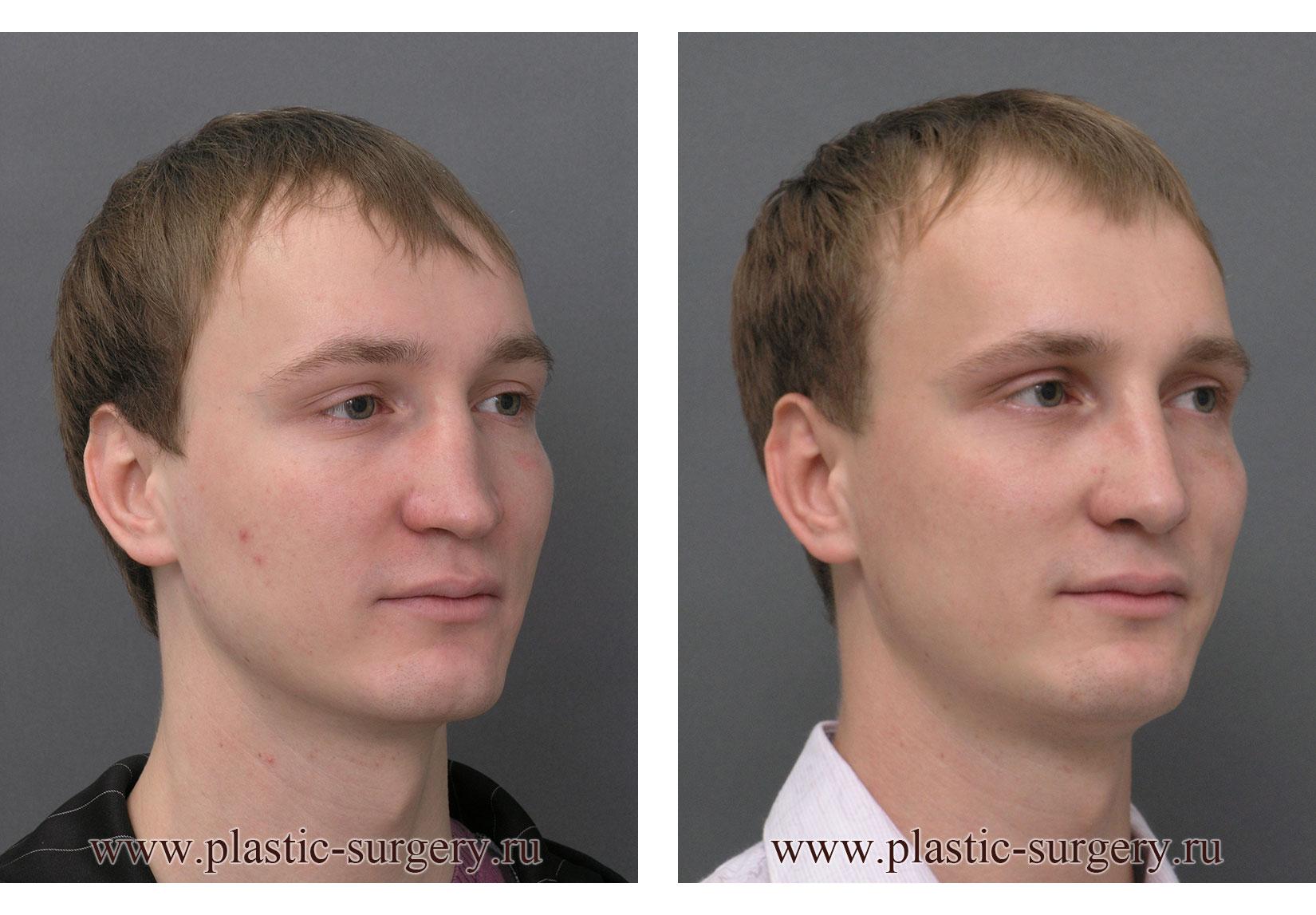 Пластический хирург цветков работ 65
